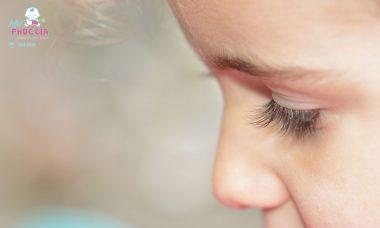 trẻ bị viêm mí mắt